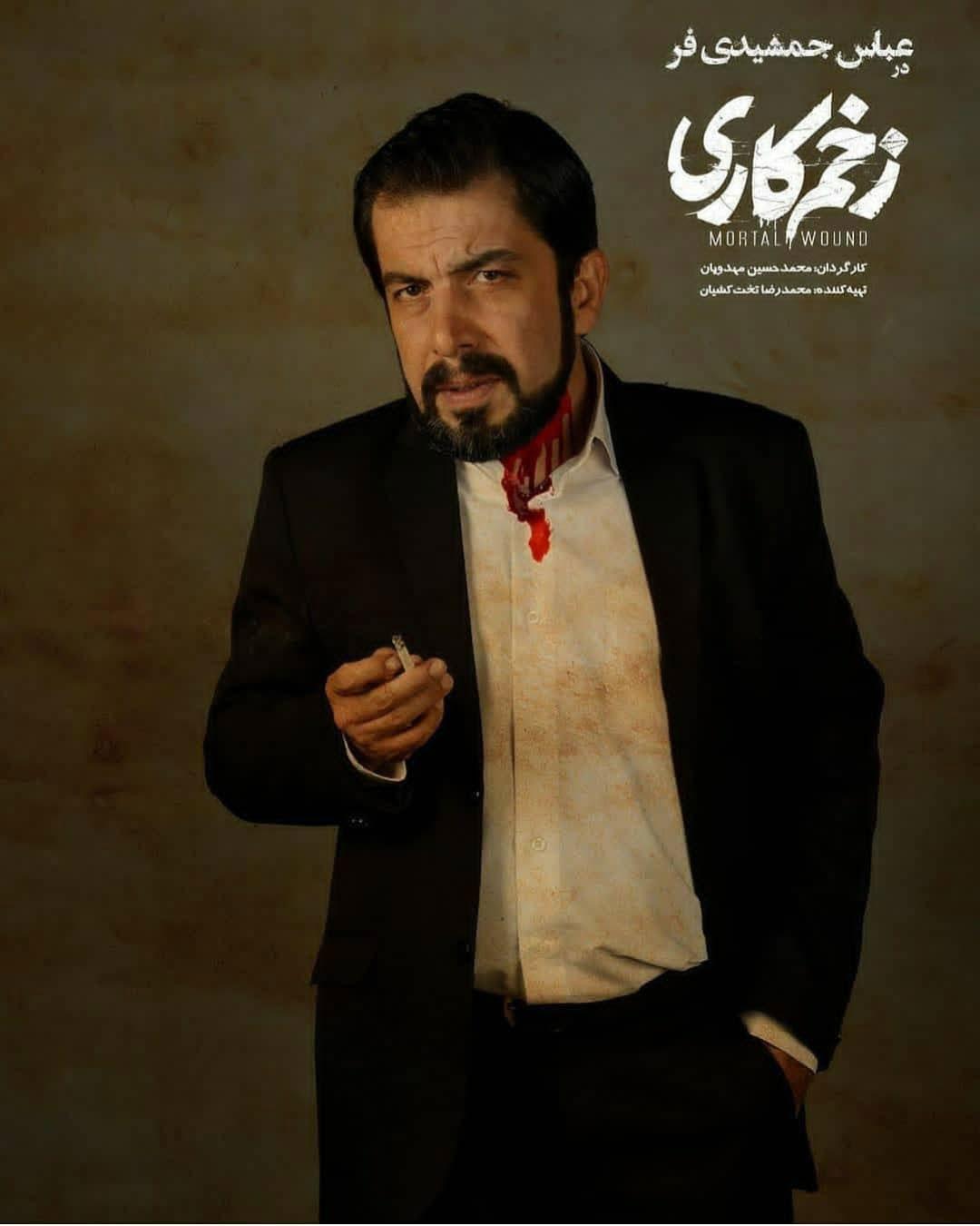 عباس جمشیدی فر در سریال زخم کاری